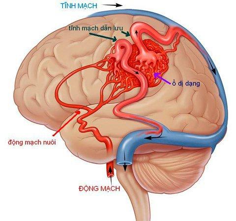 Tổng hợp các từ vựng tiếng Anh về xuất huyết não